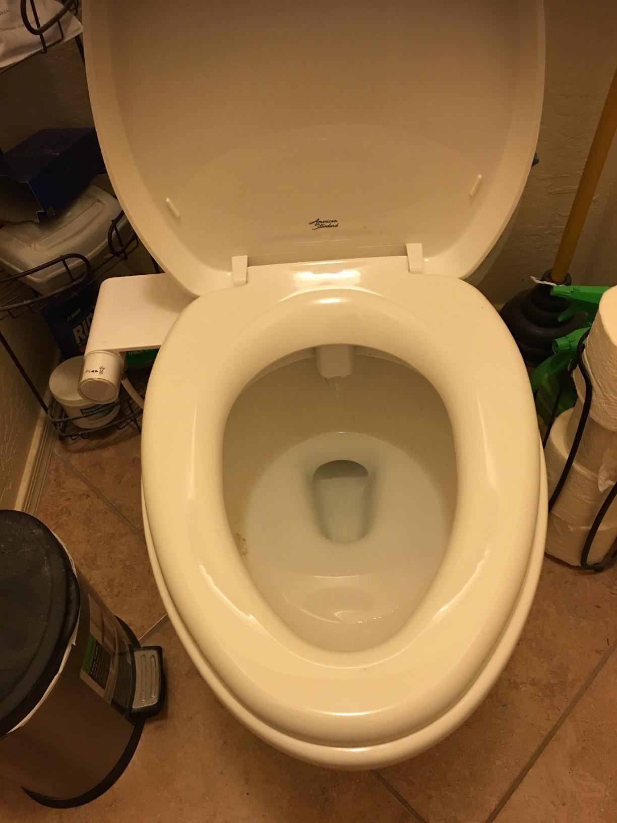 Incredible Best Bidet Toilet Seat Reviews For 2018 Bidet Toilet Seats Pdpeps Interior Chair Design Pdpepsorg