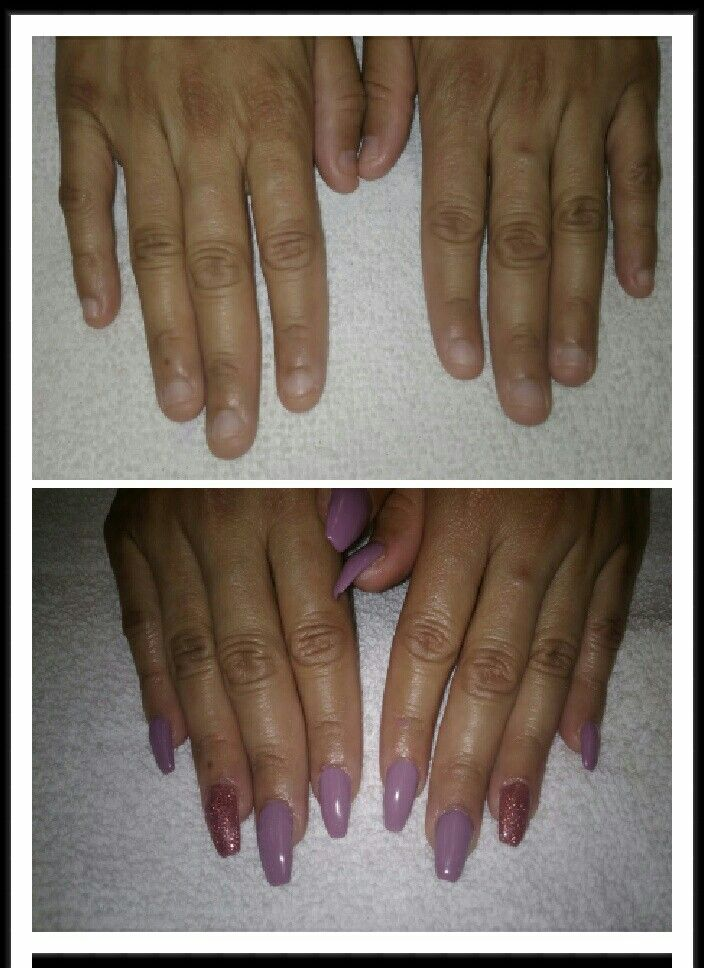 Before and after Small nail beds. Acrylic nails | BeautyK Nails 505 ...