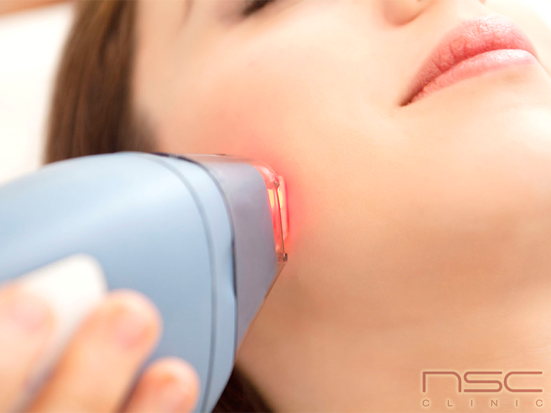 Photo of What is Laser Hair Removal?