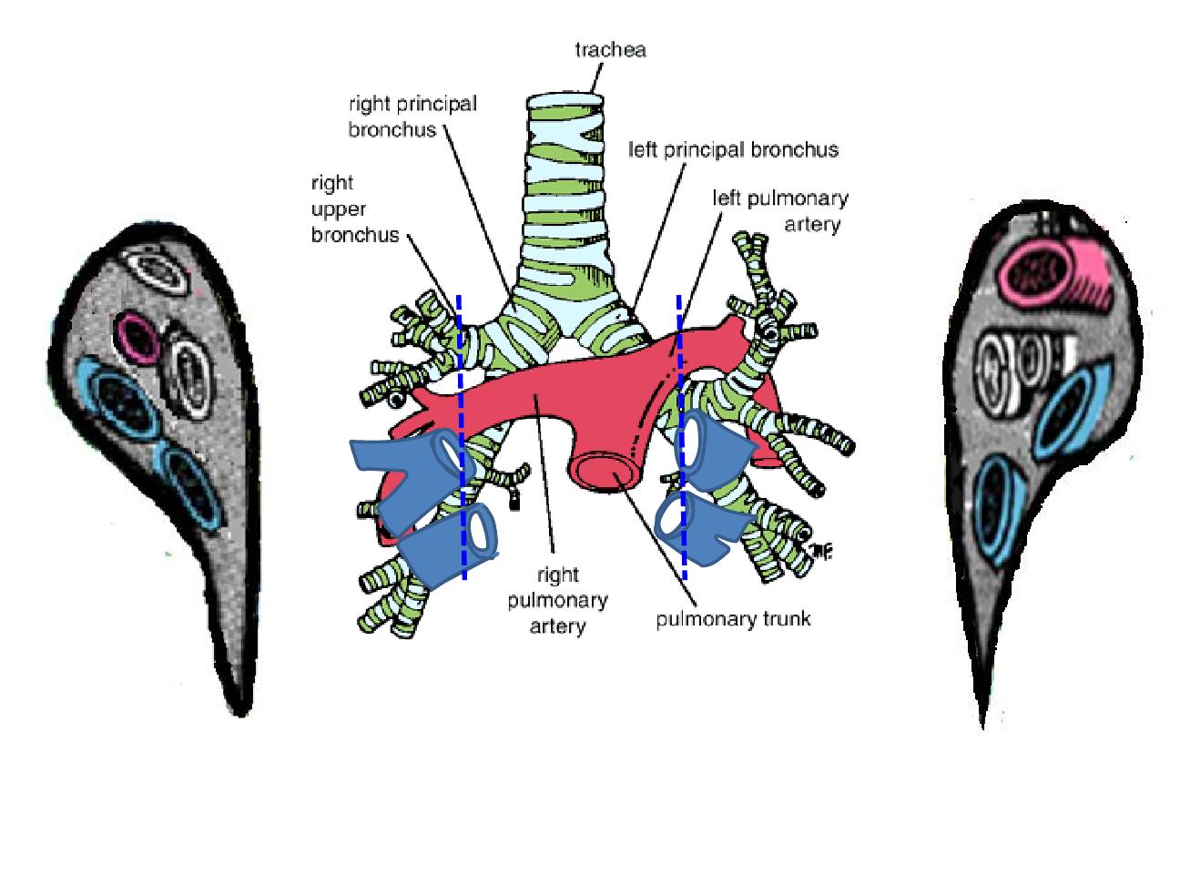 Lung hilar anatomy