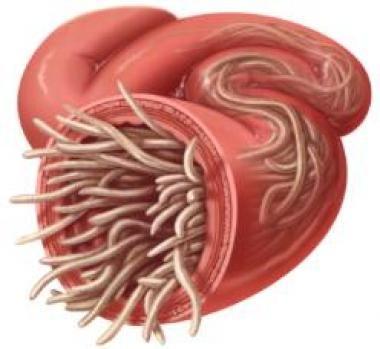 paraziták tünetei gyermekeknél pinworms a kis férgek szeretnek kezelni