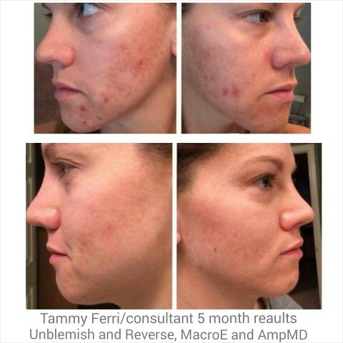 Acne is a thing of the past!  She had tried prescription medication, every drug store brand and every high end department store brand....now her acne and sundamage is a thing of her past!!!!