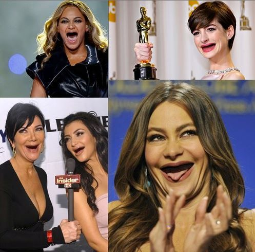 celebs without teeth- I don't know why this is so funny to me! www.summercreekdental.com