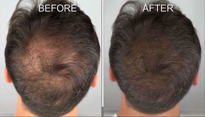 Scalp Shading by MicroArt makeup is a great solution for men and women who  have thinning hair. | Hair loss men, Hair loss solutions, Hair loss women