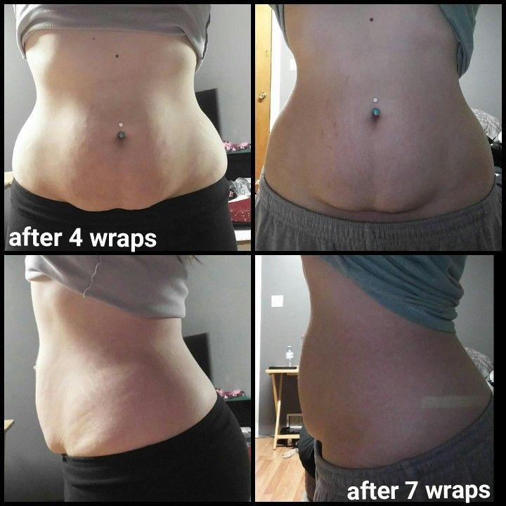 Hey guys! I also used these awesome wraps to help me aid in my weight loss! You should check them out if you're looking to tone that tummy! (Or any area, really!)