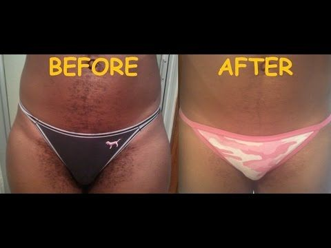 befor Bikini after wax and