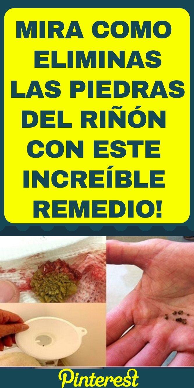 Mira Como Eliminas Las Piedras Del Riñón Con Este Increíble Remedio Tudiaadia Info Health Tips Salud