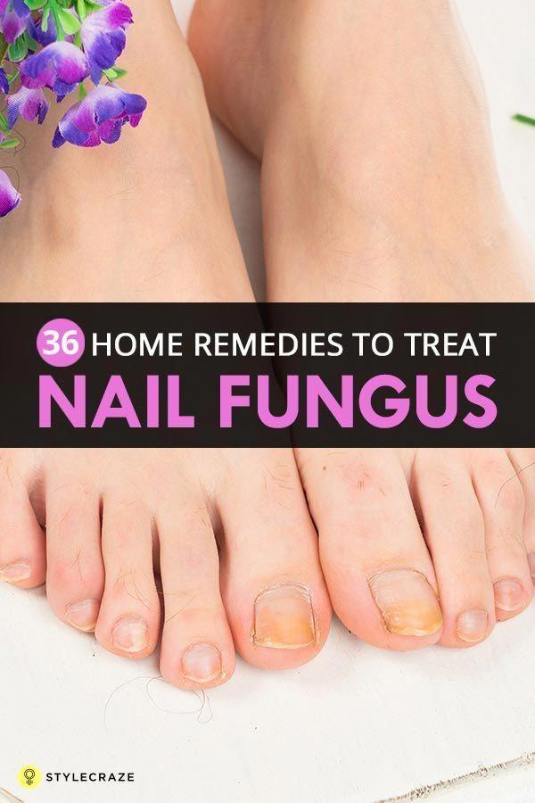 Do Laser Toenail Fungus Treatments Work #LasikSurgery   Lasik ...