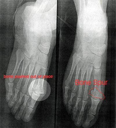 Bone spurs foot