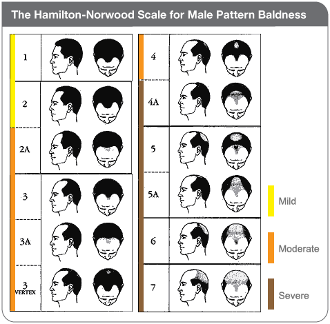 The Hamilton Norwood Scale For Male Pattern Baldness Frisuren Bei Haarausfall Mannlicher Haarausfall