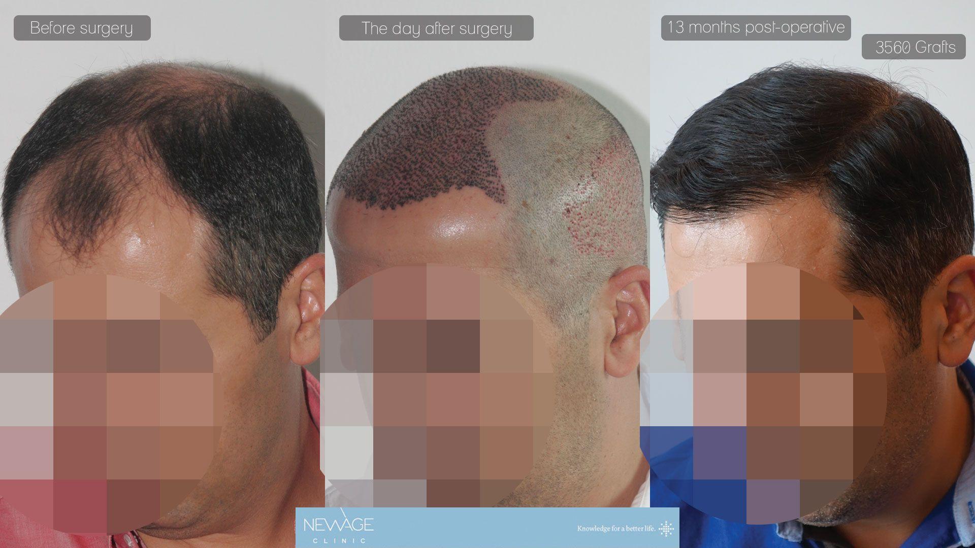 Das Ergebnis von 13 Monaten - 3560 transplantat  #haartransplantation #alopezie