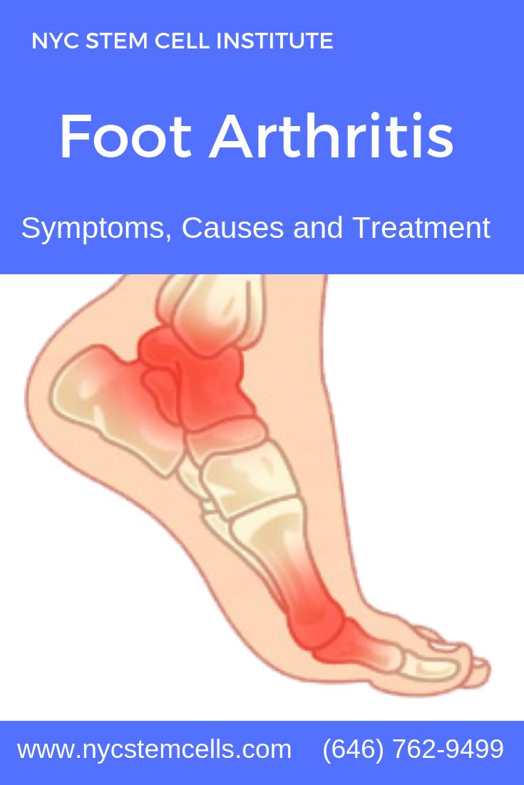 38+ Ankle pain ayurvedic medicine ideas