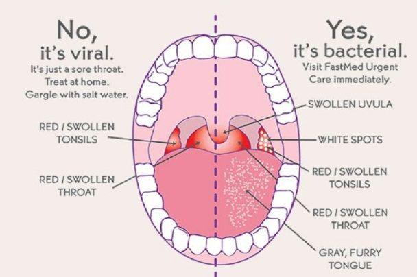How Do You Get Strep Throat Throat Remedies Strep Throat