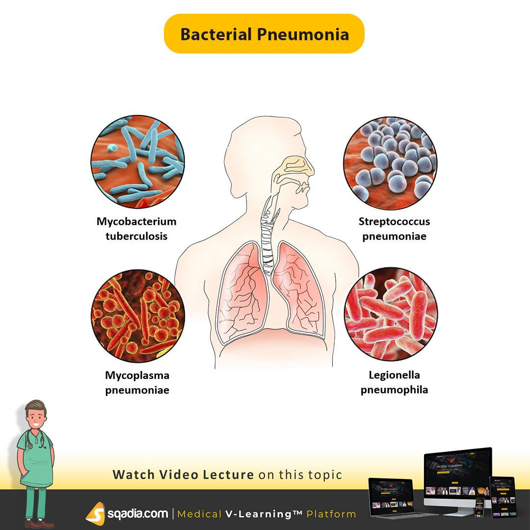 Learn About The Bacterial Pneumonia Based On A Chapter From