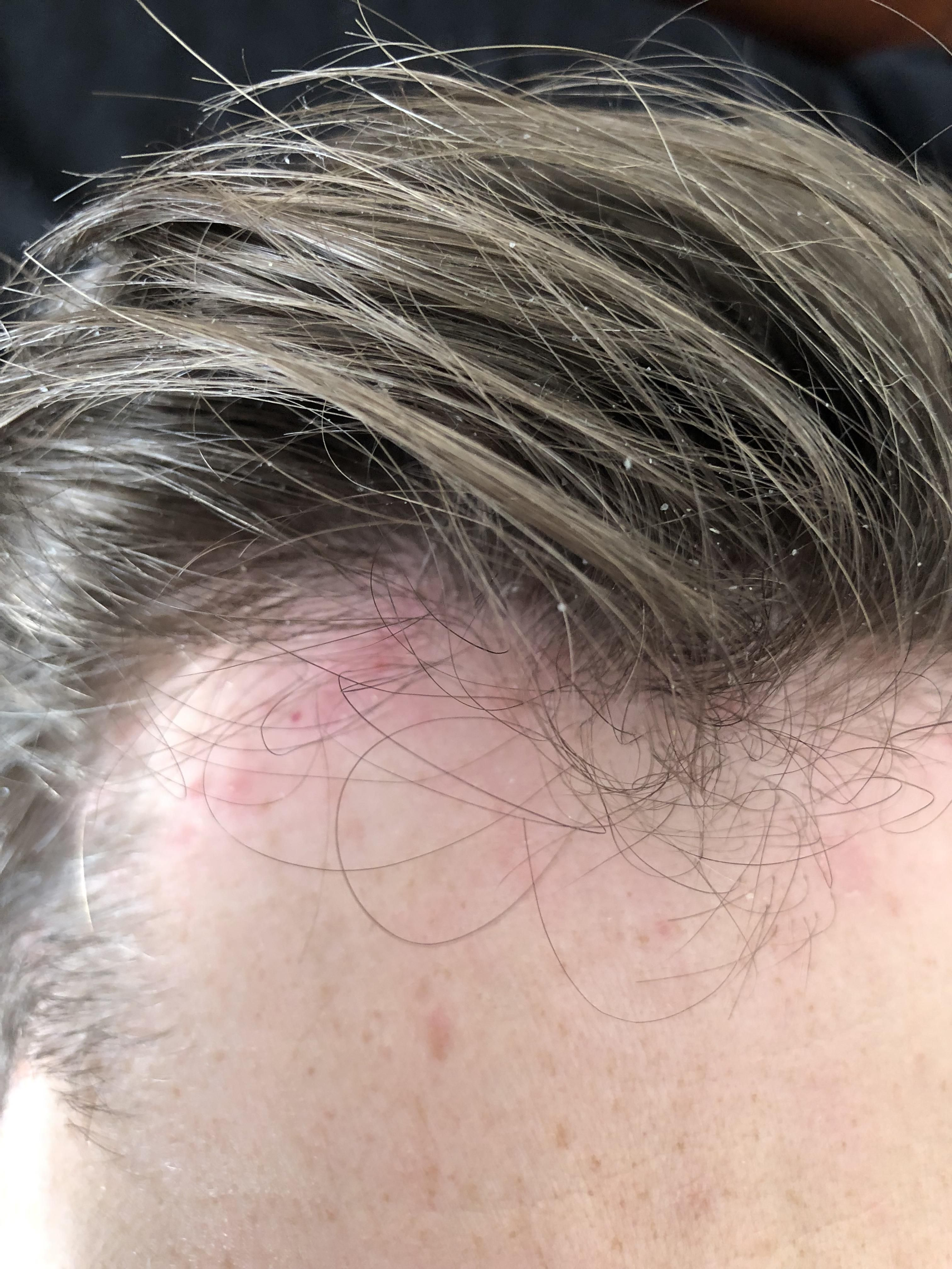 My Boyfriend Keeps Getting This Rash Near His Hairline And Is Also Experiencing Some Dandruff Picture Below Im Looking For Hairline Dandruff Sensitive Skin