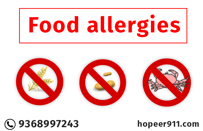 Food allergies are fairly common in adults & more in