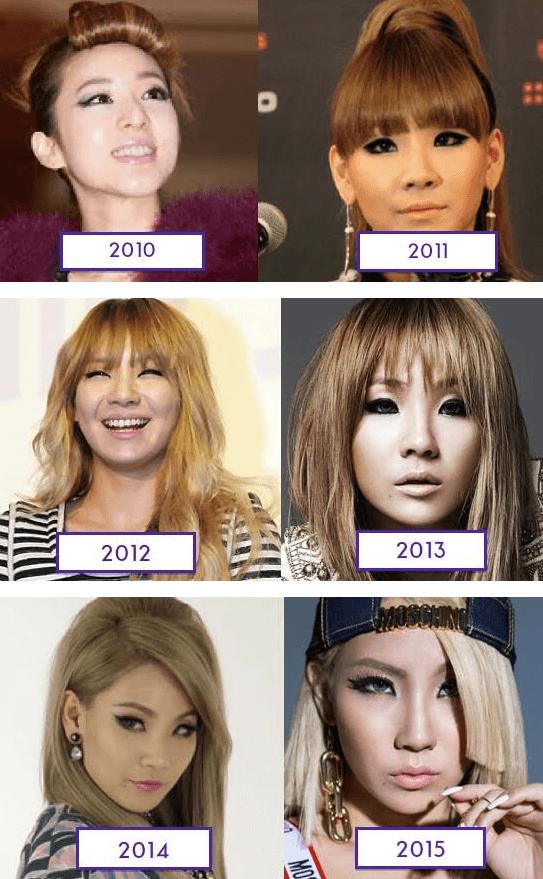 2ne1 Plastic Surgery A Loose Timeline Koreanplastic Com Plastic Surgery 2ne1 Surgery