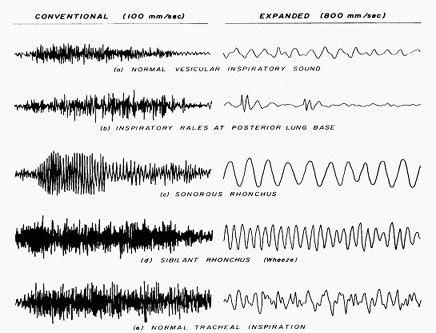 ABNORMAL BREATH SOUNDS EBOOK