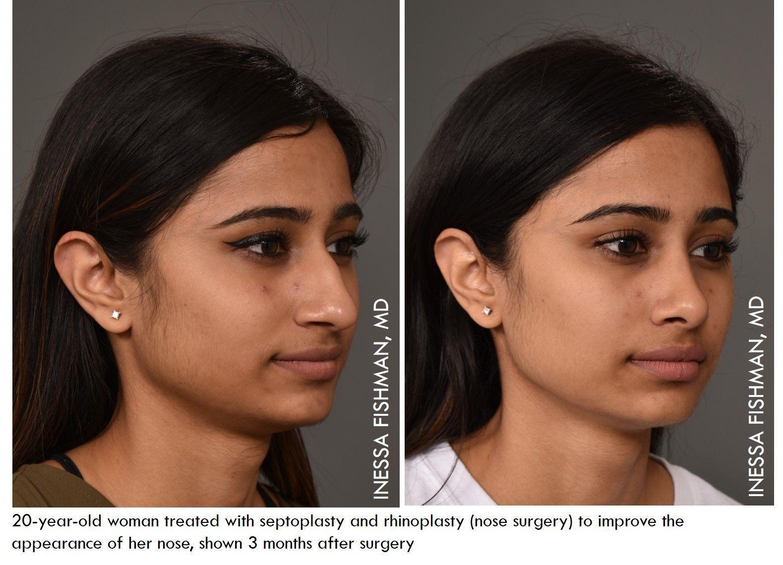 Pin Von Jody May Auf Plastic Surgery Aesthetics In 2020 Nasenkonturierung Plastische Chirurgie Gesicht