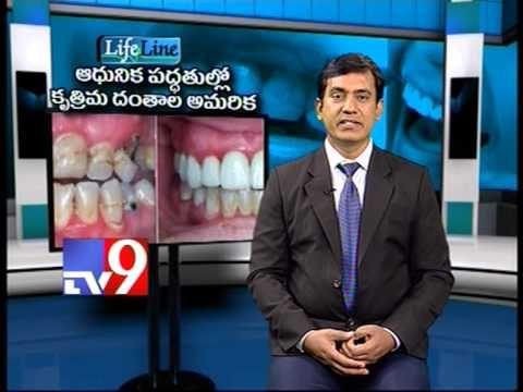 Modern methods of Artificial Teeth setting