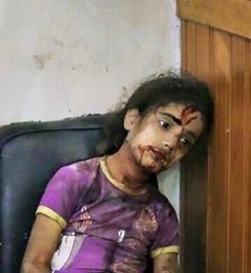 GIRL JUST escaped death when an airstrike hit her home in Sanaa. Her brother was…