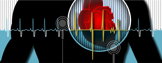 Fda Warns Of Rare But Serious Risk Of Heart Attack And Death With