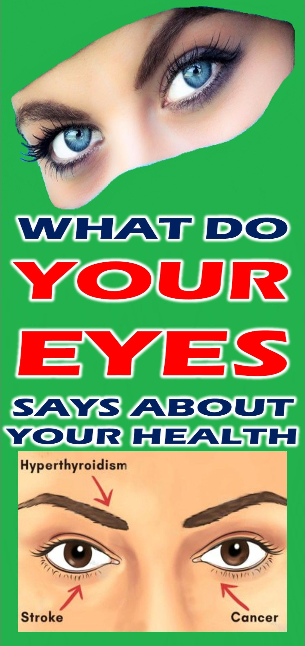 Your Eyes Are Windows to Your Stroke Risk forecasting