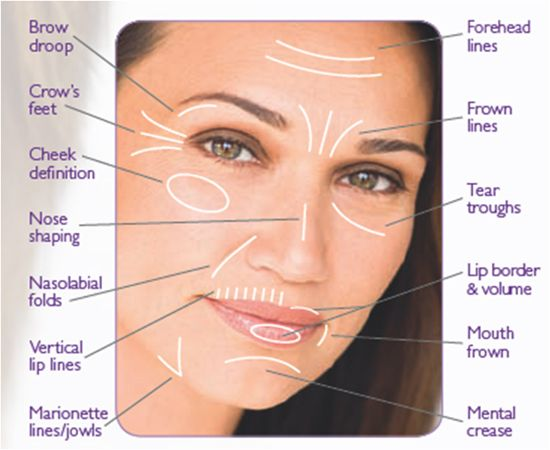 fillers for face cost   Nasolabial Folds treated with Dermal
