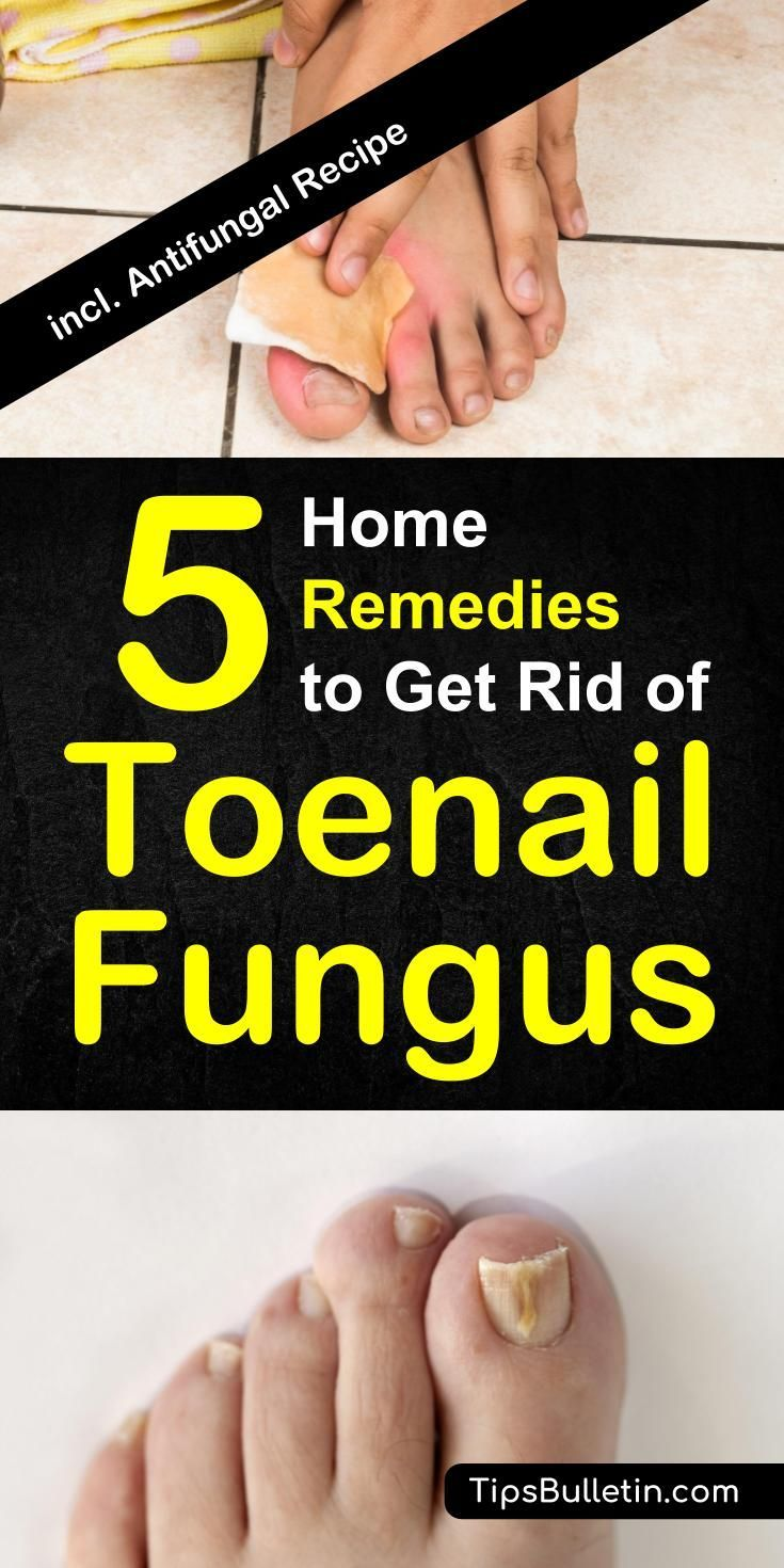 How To Get Rid of Toenail Fungus - 5 Home Remedies | Apple cider ...