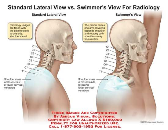 Swimmer S View Cervical Spine Google Search Xrays