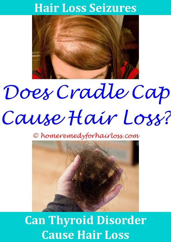 What Causes Hair Loss In Women Hair Loss Hair Loss Treatment And