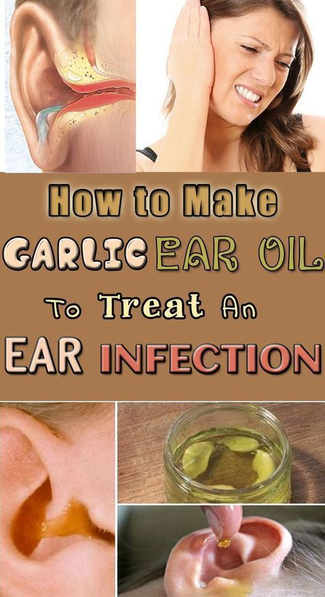 How to Make Garlic Ear Oil to Treat an Ear Infection ...