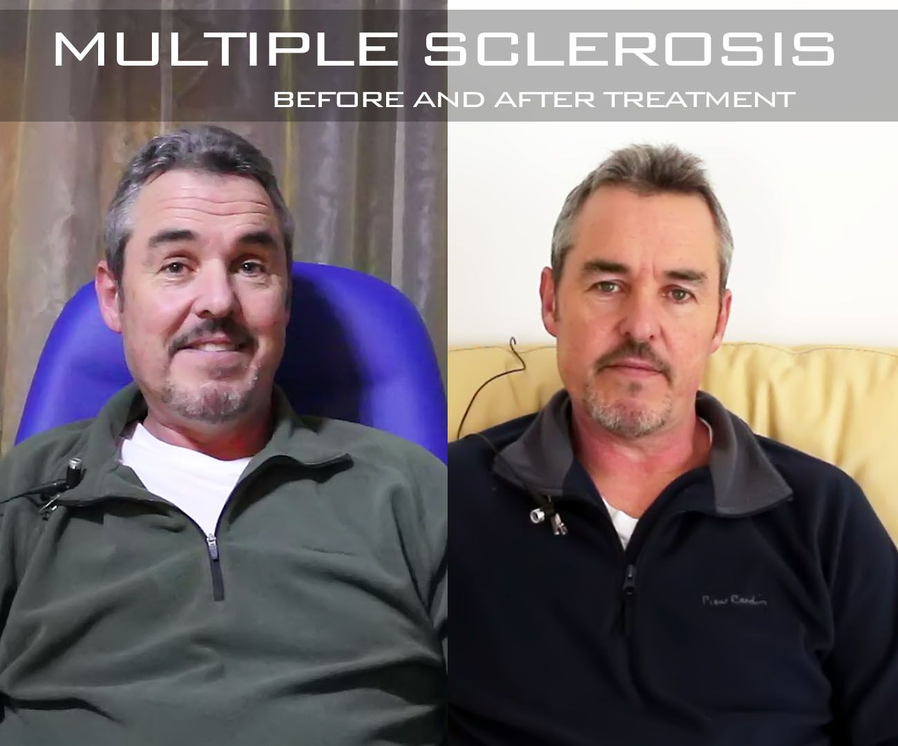 Multiple Sclerosis stem cell treatment - before and after