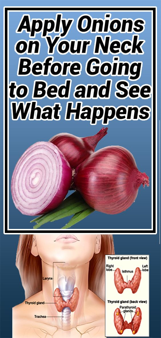 Appliquez des oignons sur votre cou avant d'aller au lit et voyez ce qui se passe