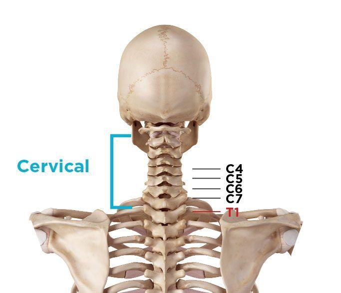 Cervical Spondylolisthesis Symptoms Causes Treatments Natural