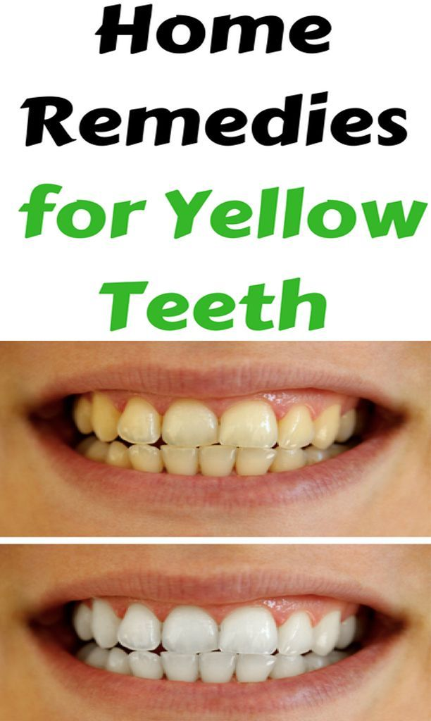 Yellow Teeth Baking Soda Teeth Whitening | Home Remedies To Whiten Teeth Instantly #HEALTH #fitfam #...