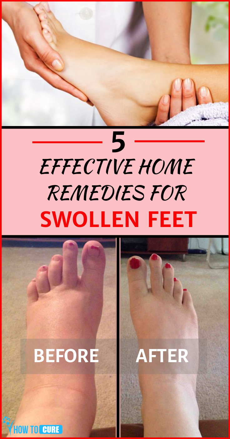 how to reduce swelling ankle