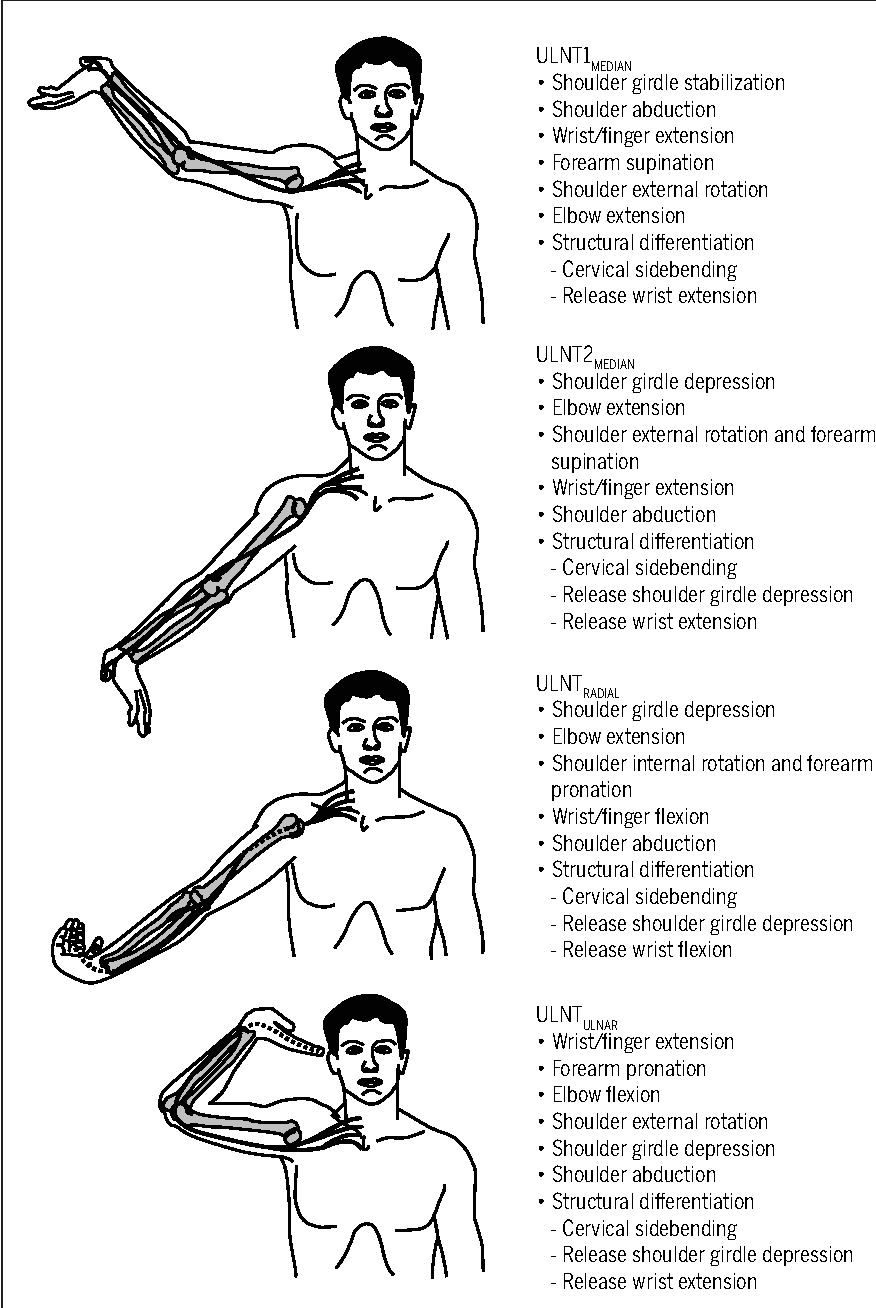 image result for upper limb tension test