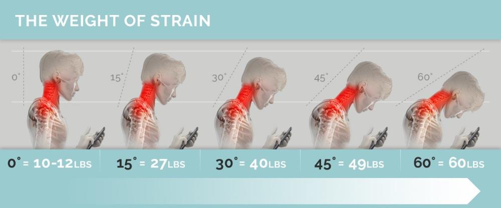 Tech Neck Shoulder Pain