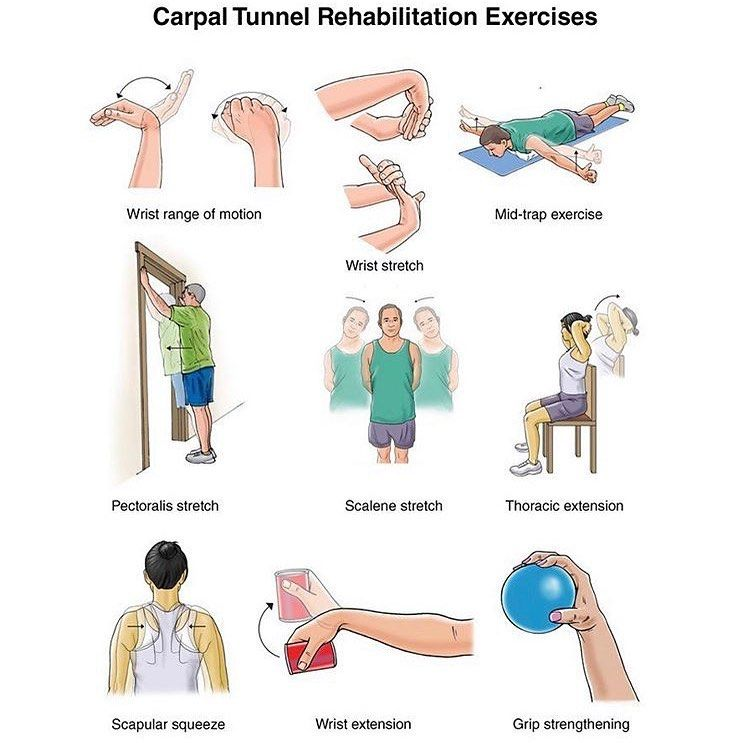 Carpal Tunnel Syndrome results from excessive pressure