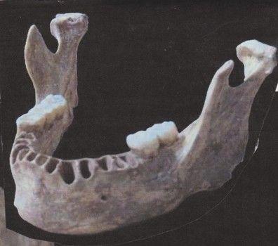 Human Jaw Bone Google Search Skulljaw Pinterest