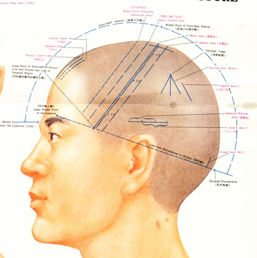 Scalp Acupuncture | Acupuncture | Acupuncture, Acupuncture ... on acupuncture points map, acupuncture needle placement map, face acupuncture map, foot acupuncture map, acupuncture meridian map, eye acupuncture map, nervous chinese acupuncture map, tongue acupuncture map, auricular acupuncture map, acupuncture brain map, ear acupuncture map,