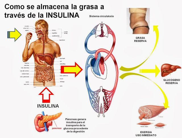 diabetes causa y efecto