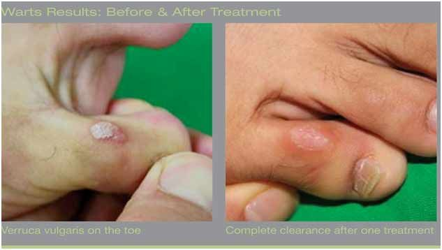 Take advantage of laser wart removal services at affordable prices