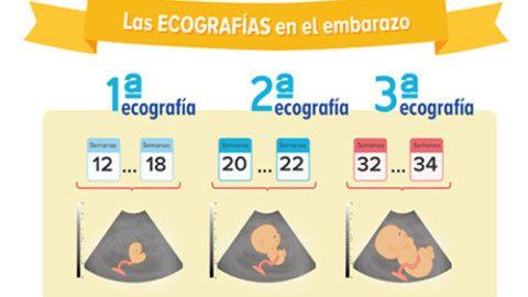 Infografia El Tamano Del Bebe Semana A Semana Con Imagenes