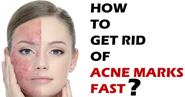 How To Get Rid Of Acne Marks Fast How To Get Rid Of Acne Acne Marks Back Acne Treatment