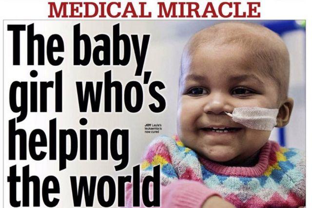 Un bébé britannique d'un an est le premier au monde à guérir d'une leucémie grâce à un traitement avec des cellules immunitaires génétiquement modifiées.