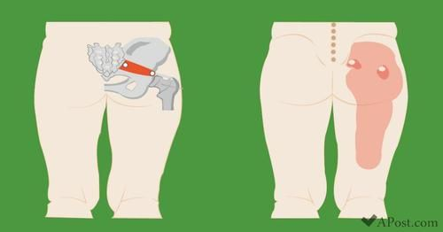 Wie man Gewicht auf dem unteren Rücken und den Hüften verliert