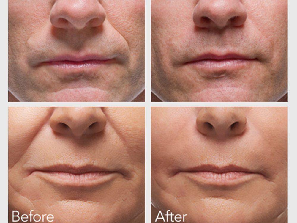 Bisexual oral facials