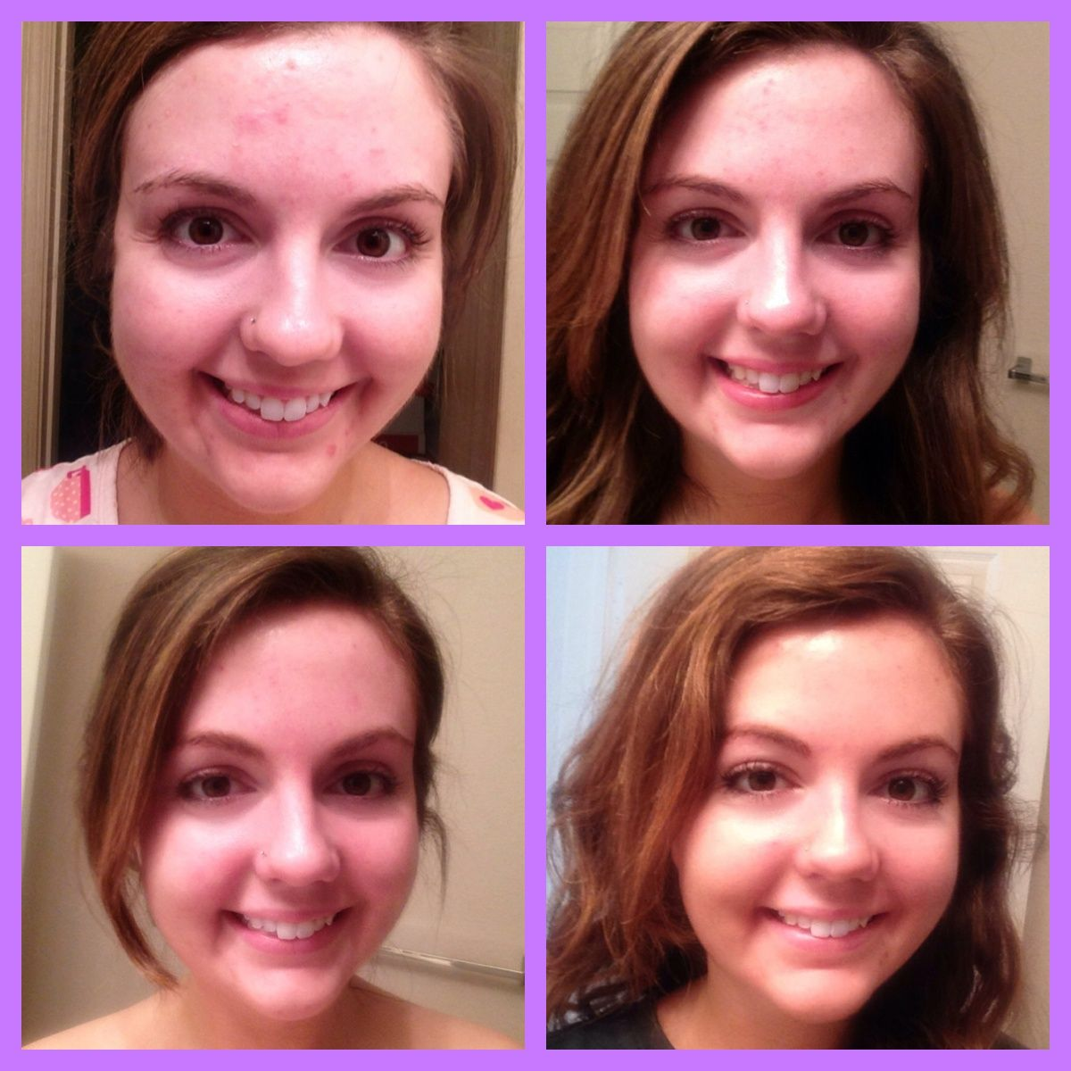 Great review and results of Rodan+Fields Unblemish line